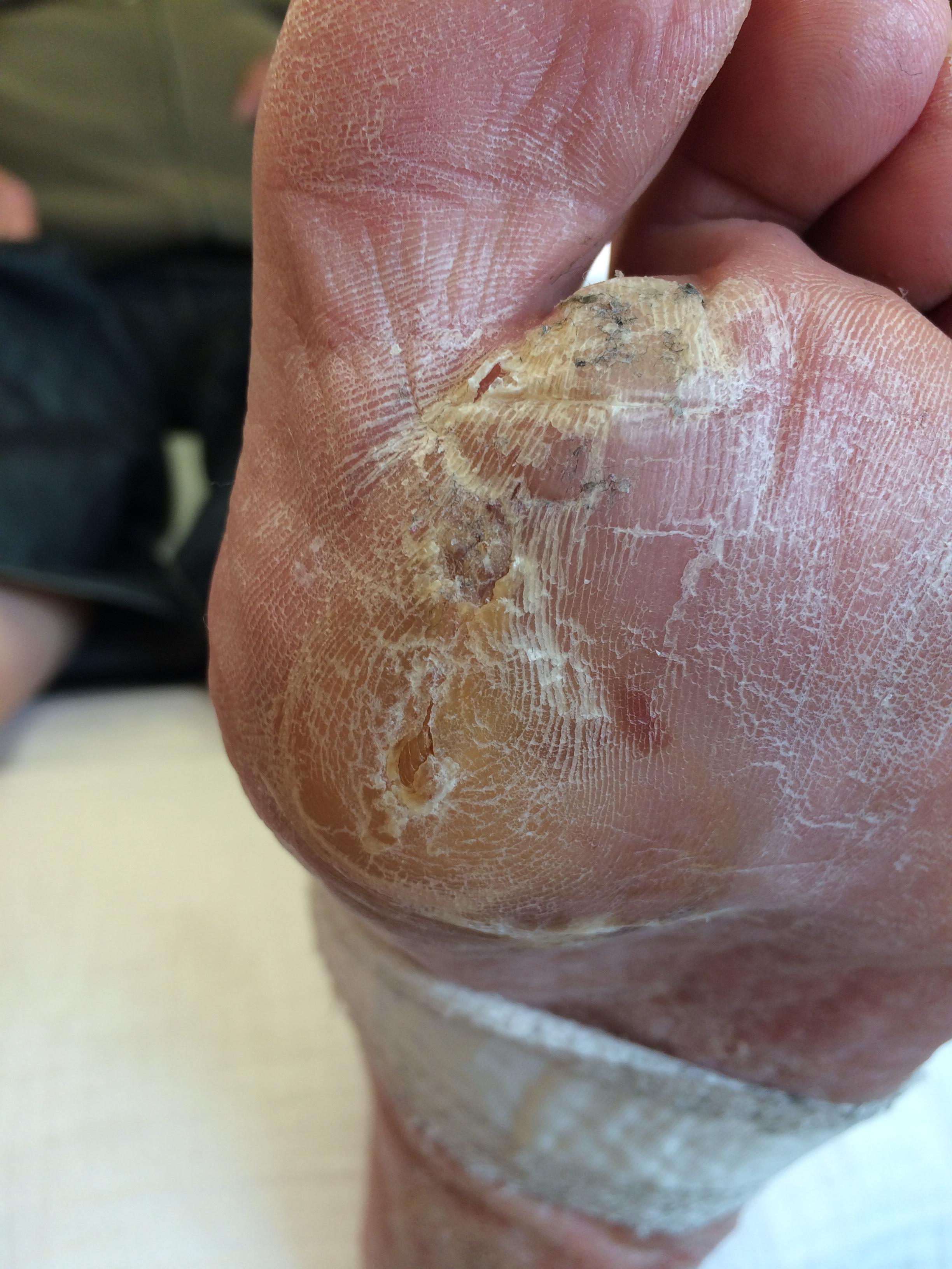 oorzaak diabetes voeten